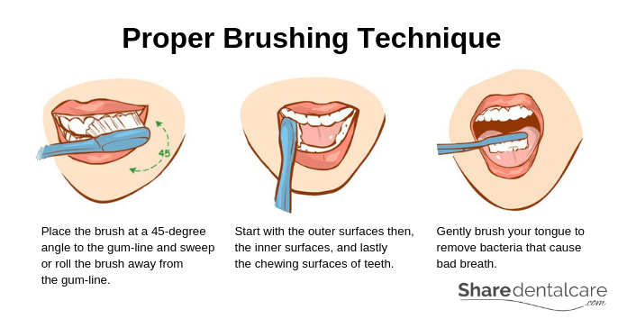 Proper Tooth Brushing Technique and Oral Hygiene