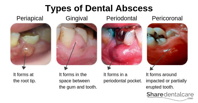 Dental Abscess Symptoms Causes Treatment Pictures