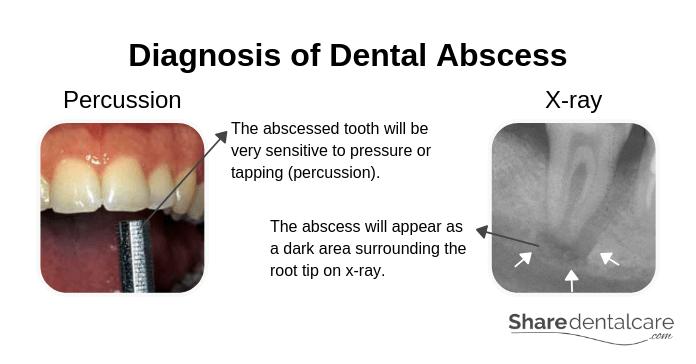 Diagnosis of Dental Abscess