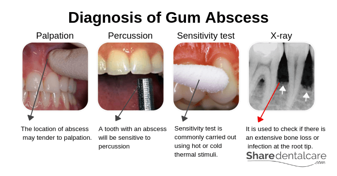 Diagnosis of Gum Abscess