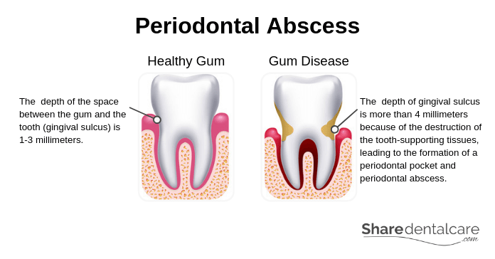 Periodontal Abscess Causes