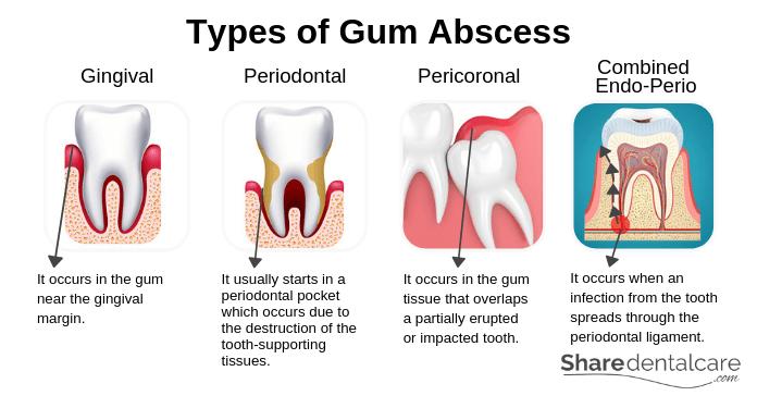 Types of Gum Abscess