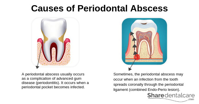 Causes of Periodontal Abscess