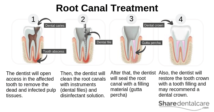 Tooth Abscess Treatment (Root Canal Treatment)