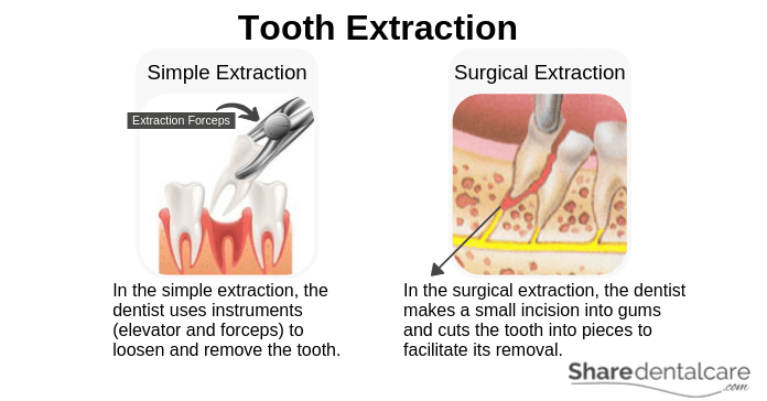 Tooth Abscess Treatment (Tooth Extraction)