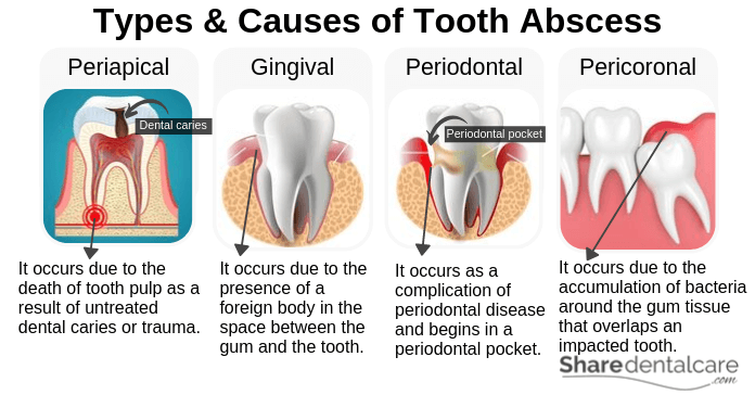 Types and Causes of Tooth Abscess