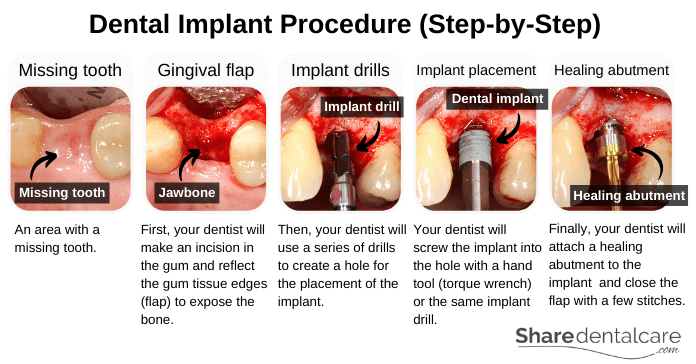 Dental Implant Procedure (Step-by-Step)