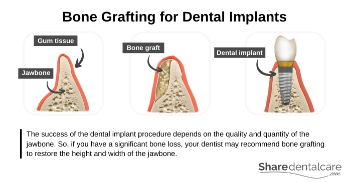 Bone Grafting before the Dental Implant Procedure