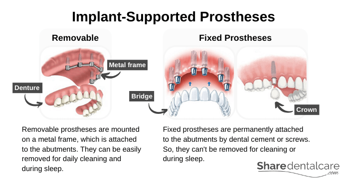 Implant-Supported Prostheses