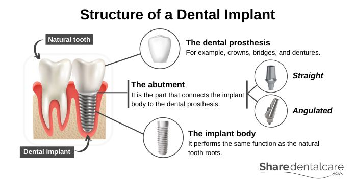 Structure of a Dental Implant