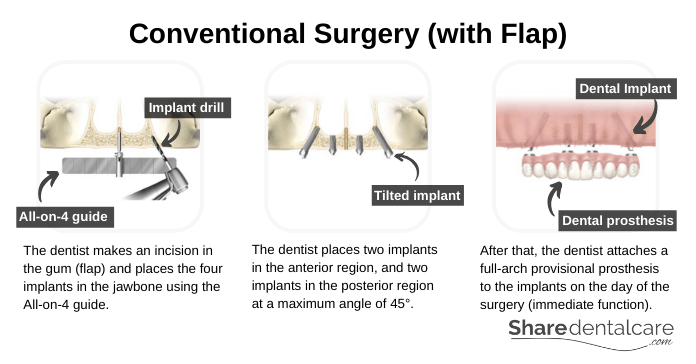 Conventional All-On 4-Surgery (with Flap)