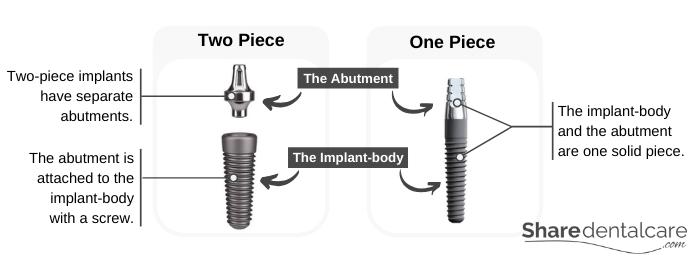 Dental implants: one-piece vs two-piece