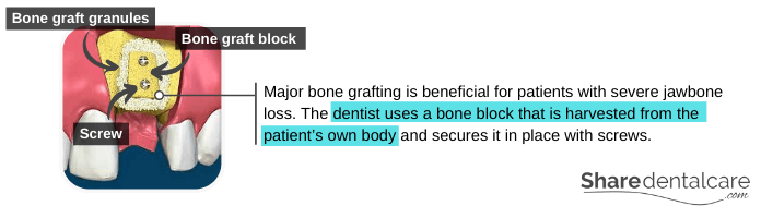 Major Bone Grafting for Dental Implants