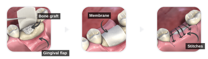 Medium Bone Grafting for Dental Implants