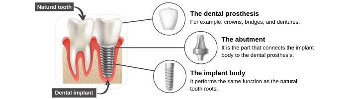 Conventional Implants