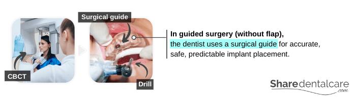 Guided Mini Dental Implant Surgery