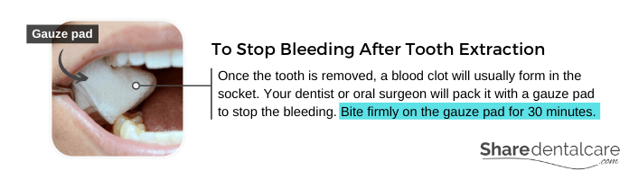 Bite on the Gauze Pad To Stop Bleeding (Tooth Extraction Aftercare)