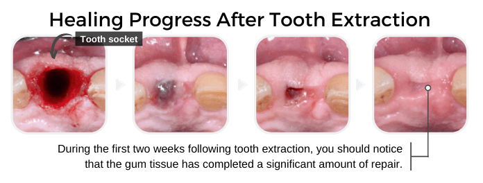 Healing progress after the removal of a tooth