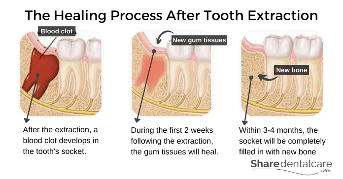 The Healing Process After Tooth Extraction