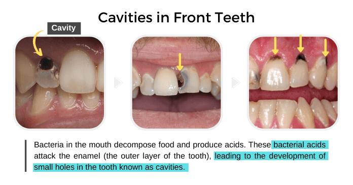 Cavities in Front Teeth