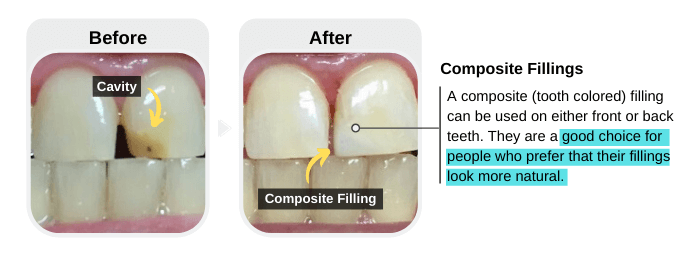 Composite (tooth-colored) Fillings for the Treatment of Cavities in Front Teeth