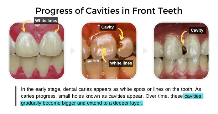 Progress of Cavities in Front Teeth