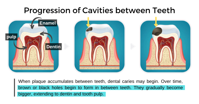 Progression of Cavities in between Teeth