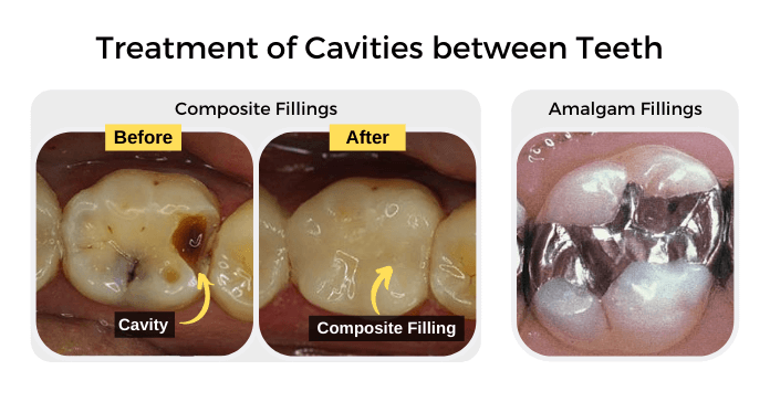 Treatment of Cavities in between Teeth