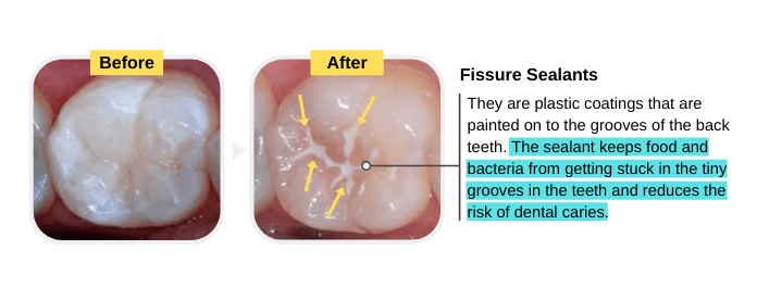 Fissure Sealants for the Prevention of Cavities in Baby Teeth