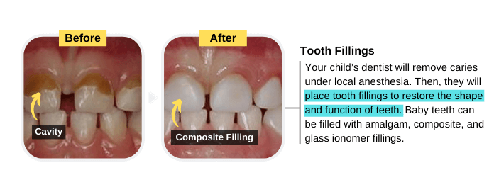 Tooth Fillings (Composite) for the Treatment of Cavities in Baby teeth