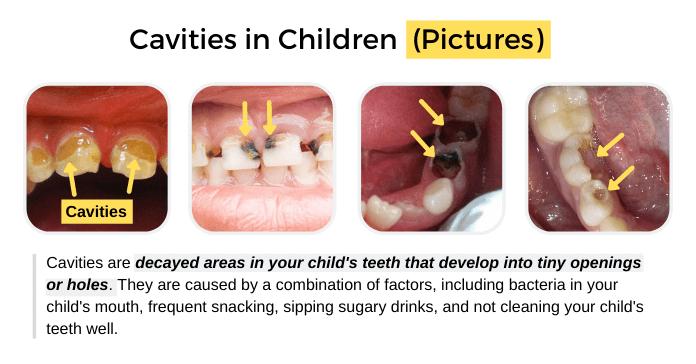 Cavities in Children (Pictures)