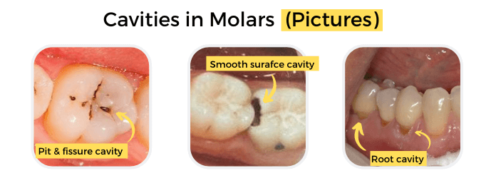 Cavities in Molars (Pictures)