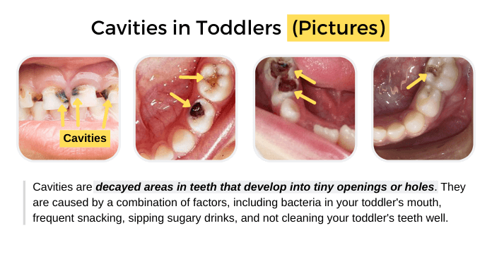 Cavities in Toddlers (Pictures)