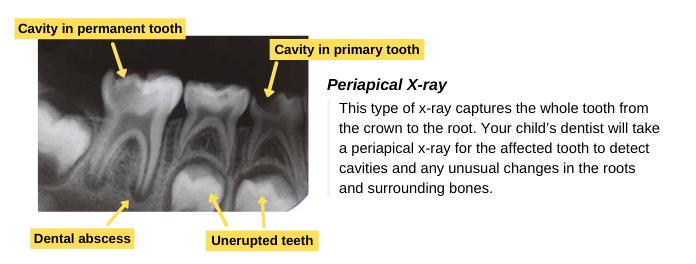 Periapical X-ray (Diagnosis)