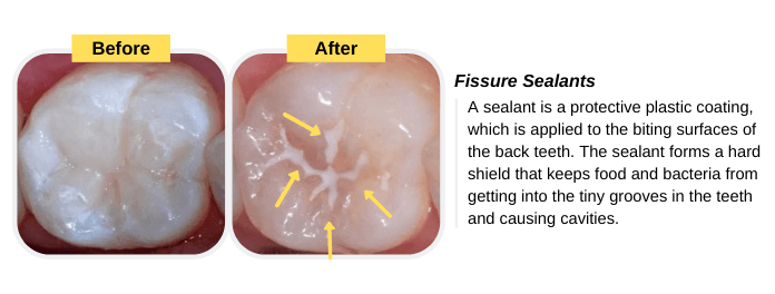 Prevention of Cavities (Fissure Sealants)