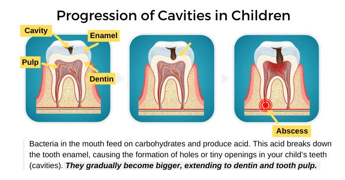 Progression of Cavities in Children