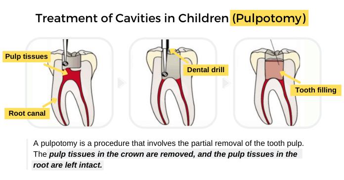 Treatment of Cavities in Children (Pulpotomy)