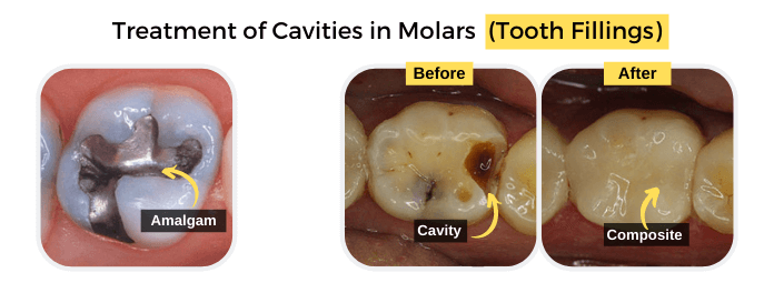 Treatment of Cavities in Molars (Tooth Fillings)