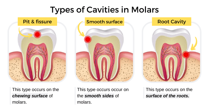 Types of Cavities in Molars