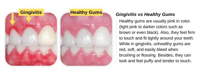 Gingivitis vs. Healthy Gums (Pictures), Symptoms & Treatment