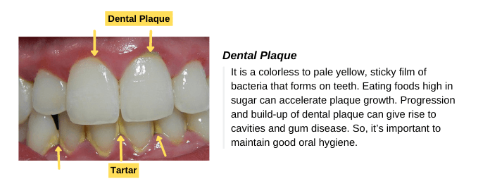 Plaque and tartar turn healthy gums into gingivitis
