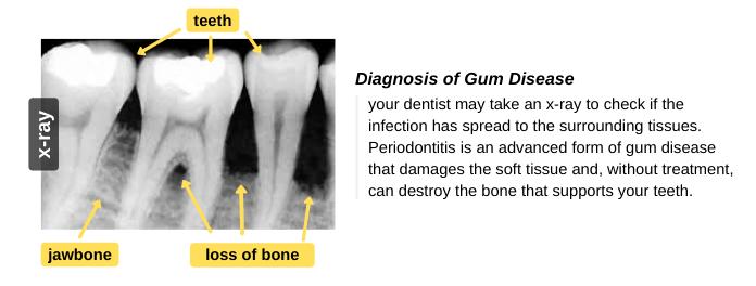 Diagnosis of Gum Disease (Gingivitis)