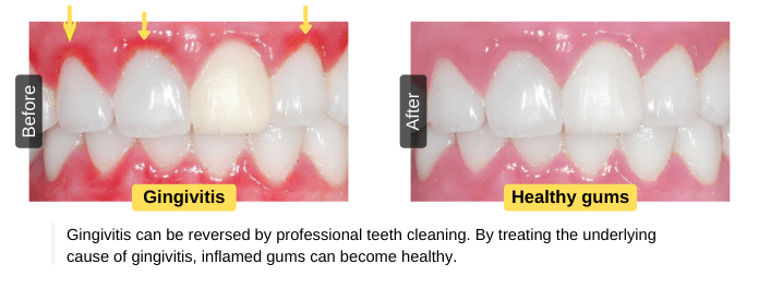 Gingivitis can be reversed