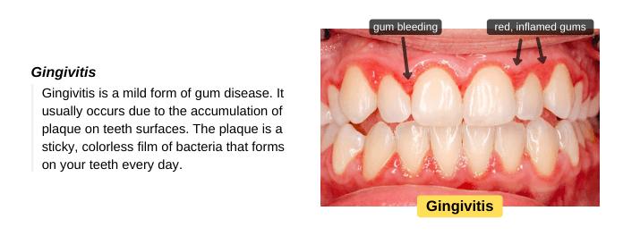 Gingivitis is a mild form of gums disease
