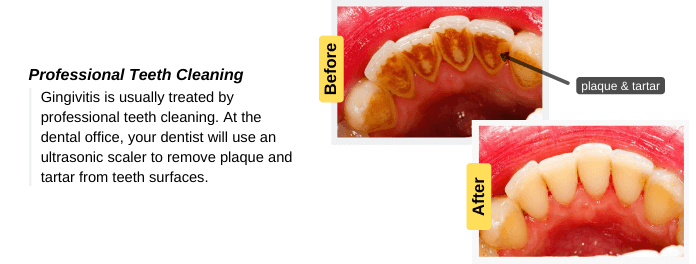 Gingivitis is treated by professional teeth cleaning