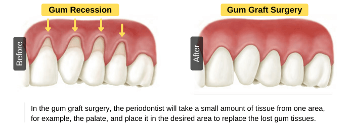 Gum graft surgery for the treatment of gum recssion
