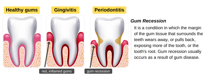 Gum recession caused by gingivitis and periodontitis