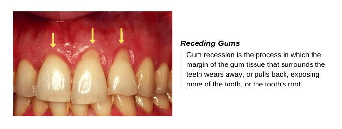 Signs & Symptoms of Gingivitis  (Receding Gums)