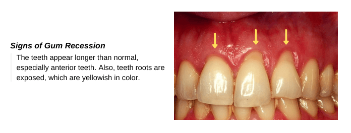 Signs of Gingivitis / Periodontitis & Gum Recession