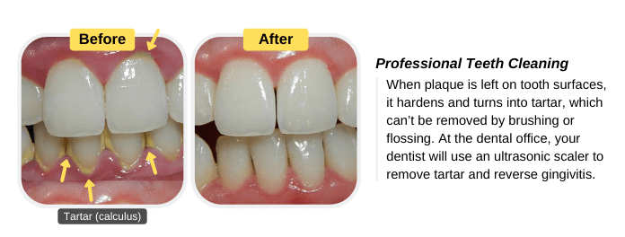 The dentist will use an ultrasonic scaler to remove tartar and reverse gingivitis